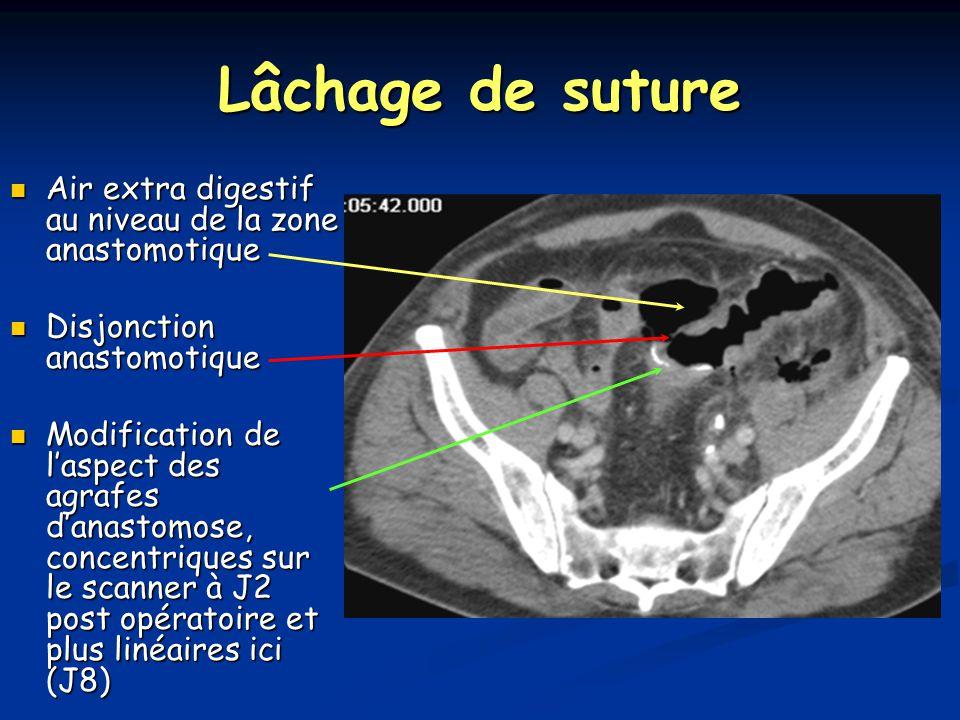 Lâchage de suture Air extra digestif au niveau de la zone anastomotique Air extra digestif au niveau de la zone anastomotique Disjonction anastomotique Disjonction anastomotique Modification de l'aspect des agrafes d'anastomose, concentriques sur le scanner à J2 post opératoire et plus linéaires ici (J8) Modification de l'aspect des agrafes d'anastomose, concentriques sur le scanner à J2 post opératoire et plus linéaires ici (J8)