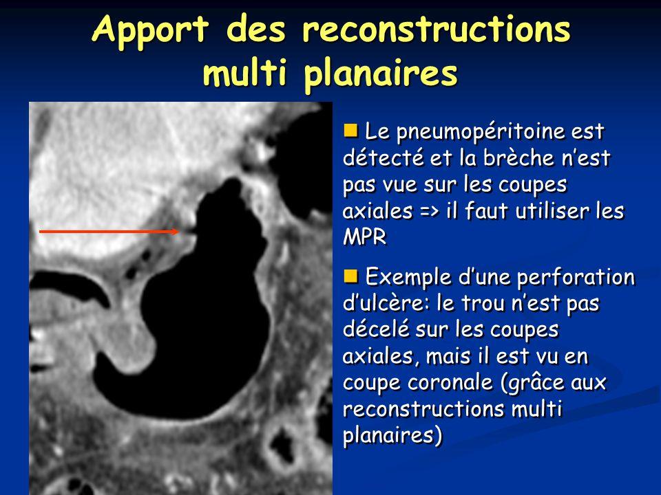 Apport des reconstructions multi planaires Le pneumopéritoine est détecté et la brèche n'est pas vue sur les coupes axiales => il faut utiliser les MPR Exemple d'une perforation d'ulcère: le trou n'est pas décelé sur les coupes axiales, mais il est vu en coupe coronale (grâce aux reconstructions multi planaires) Le pneumopéritoine est détecté et la brèche n'est pas vue sur les coupes axiales => il faut utiliser les MPR Exemple d'une perforation d'ulcère: le trou n'est pas décelé sur les coupes axiales, mais il est vu en coupe coronale (grâce aux reconstructions multi planaires)