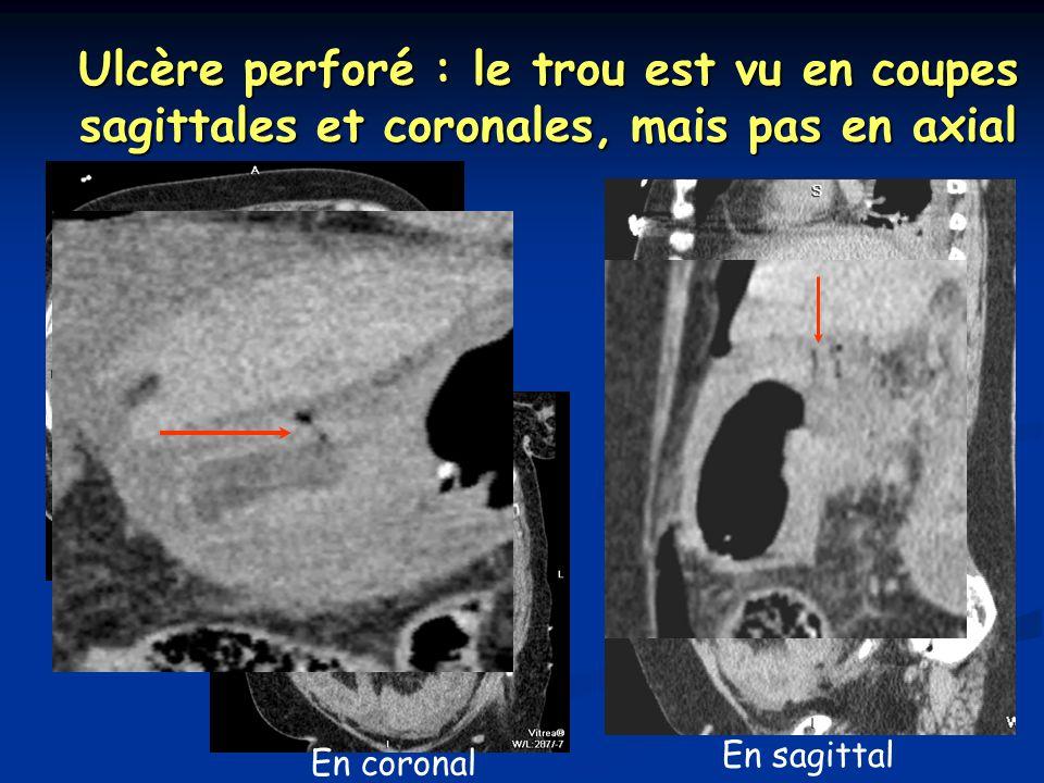 Ulcère perforé : le trou est vu en coupes sagittales et coronales, mais pas en axial Où est le trou .
