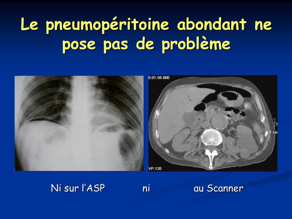 Le pneumopéritoine abondant ne pose pas de problème Ni sur l'ASP ni au Scanner