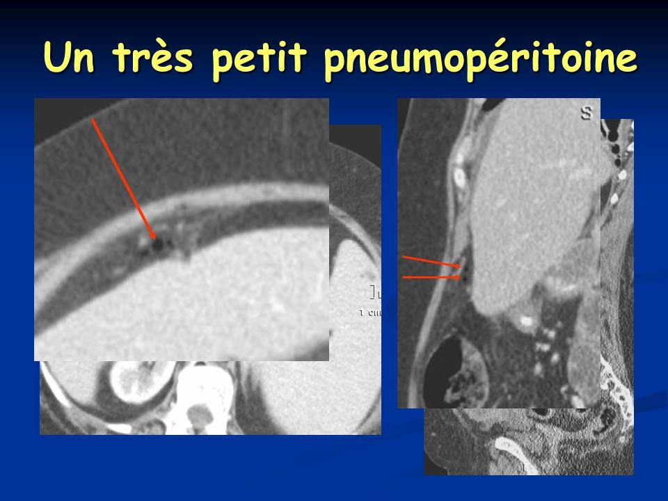 Un très petit pneumopéritoine