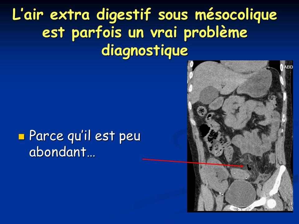 L'air extra digestif sous mésocolique est parfois un vrai problème diagnostique Parce qu'il est peu abondant… Parce qu'il est peu abondant…