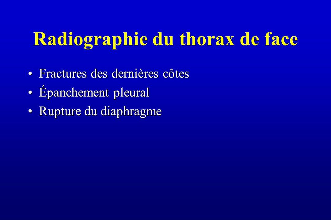 Radiographie du thorax de face Fractures des dernières côtesFractures des dernières côtes Épanchement pleuralÉpanchement pleural Rupture du diaphragmeRupture du diaphragme