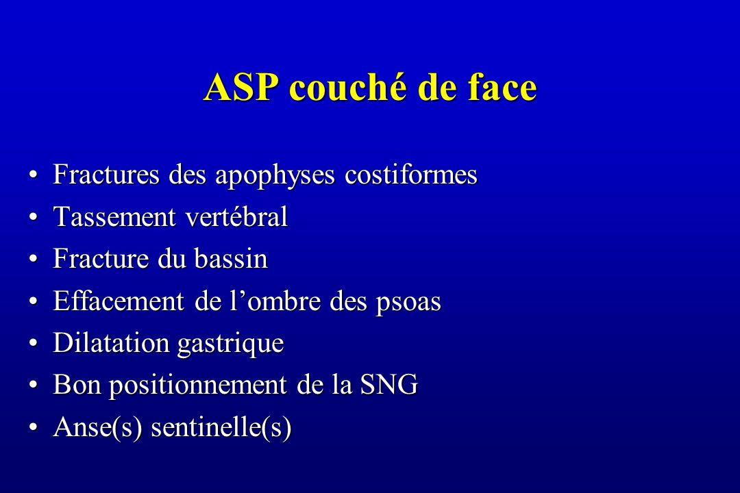 ASP couché de face Fractures des apophyses costiformesFractures des apophyses costiformes Tassement vertébralTassement vertébral Fracture du bassinFracture du bassin Effacement de l'ombre des psoasEffacement de l'ombre des psoas Dilatation gastriqueDilatation gastrique Bon positionnement de la SNGBon positionnement de la SNG Anse(s) sentinelle(s)Anse(s) sentinelle(s)