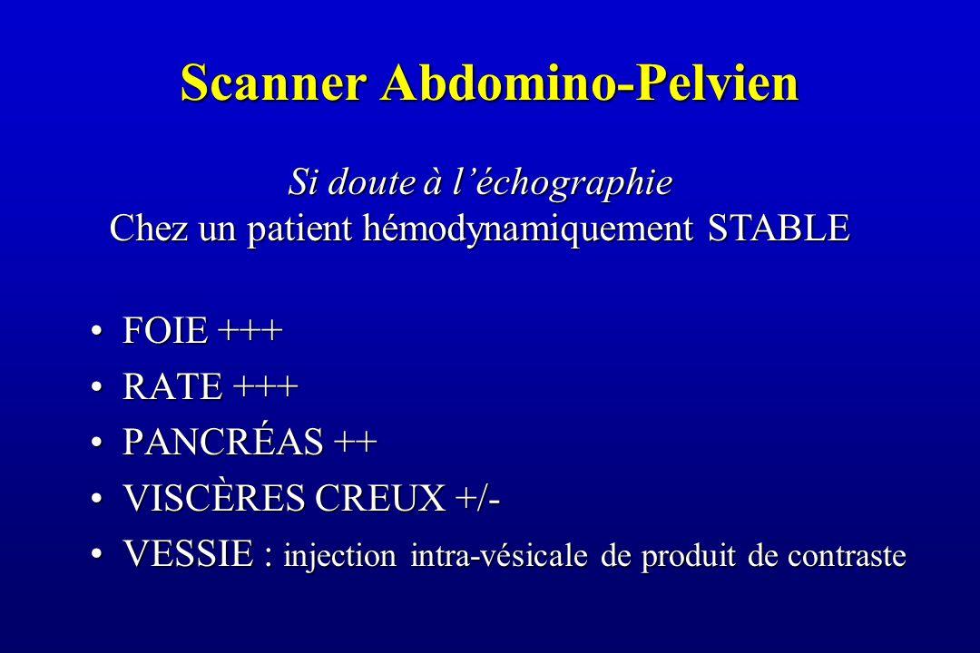 Scanner Abdomino-Pelvien FOIE +++FOIE +++ RATE +++RATE +++ PANCRÉAS ++PANCRÉAS ++ VISCÈRES CREUX +/-VISCÈRES CREUX +/- VESSIE : injection intra-vésicale de produit de contrasteVESSIE : injection intra-vésicale de produit de contraste Si doute à l'échographie Chez un patient hémodynamiquement STABLE