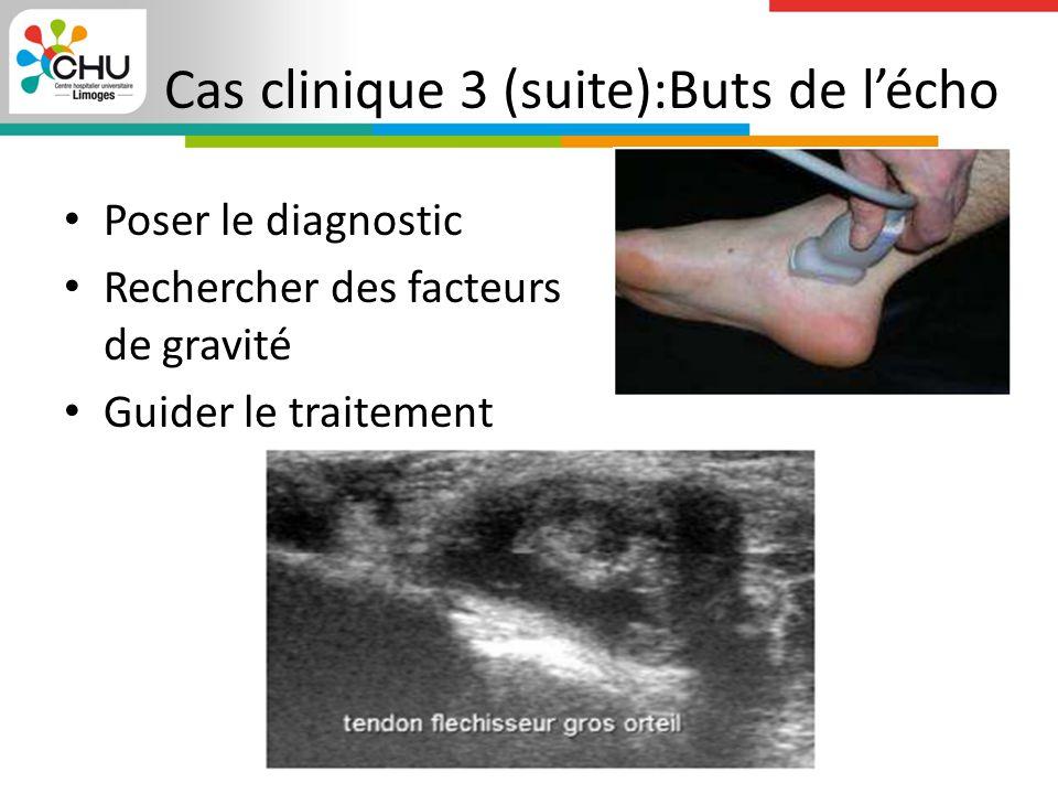 Cas clinique 3 (suite):Buts de l'écho Poser le diagnostic Rechercher des facteurs de gravité Guider le traitement