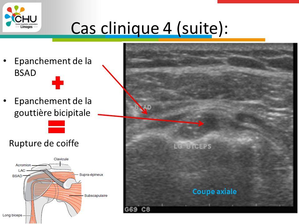 Cas clinique 4 (suite): Epanchement de la BSAD Epanchement de la gouttière bicipitale Coupe axiale Rupture de coiffe