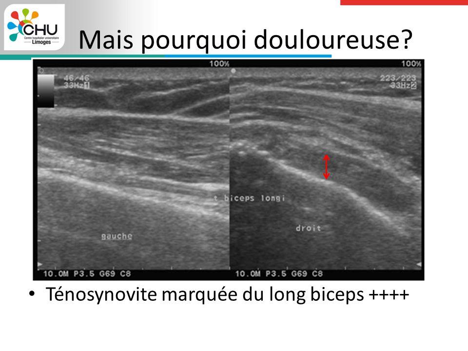 Mais pourquoi douloureuse? Ténosynovite marquée du long biceps ++++