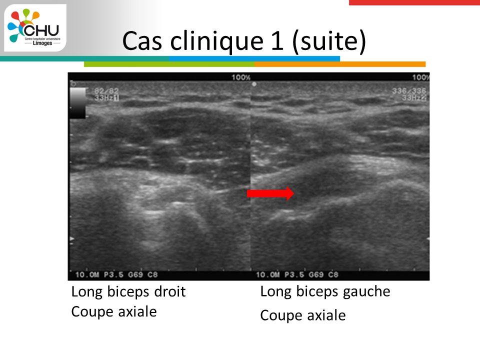 Cas clinique 1 (suite) Long biceps droit Coupe axiale Long biceps gauche Coupe axiale
