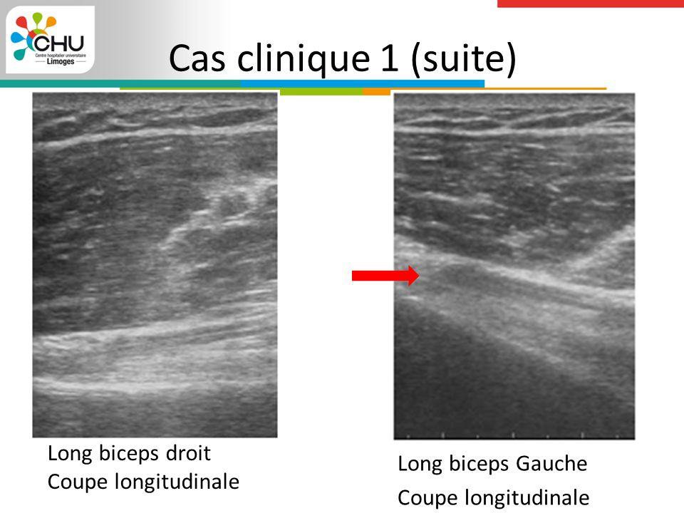 Cas clinique 1 (suite) Long biceps Gauche Coupe longitudinale Long biceps droit Coupe longitudinale