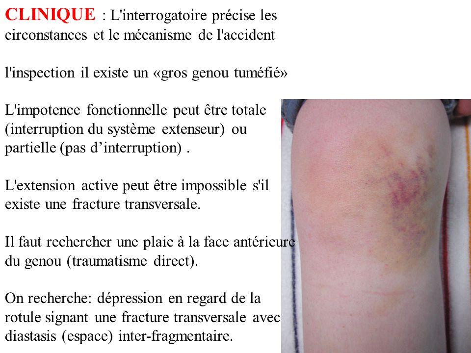 CLINIQUE : L'interrogatoire précise les circonstances et le mécanisme de l'accident l'inspection il existe un «gros genou tuméfié» L'impotence fonctio