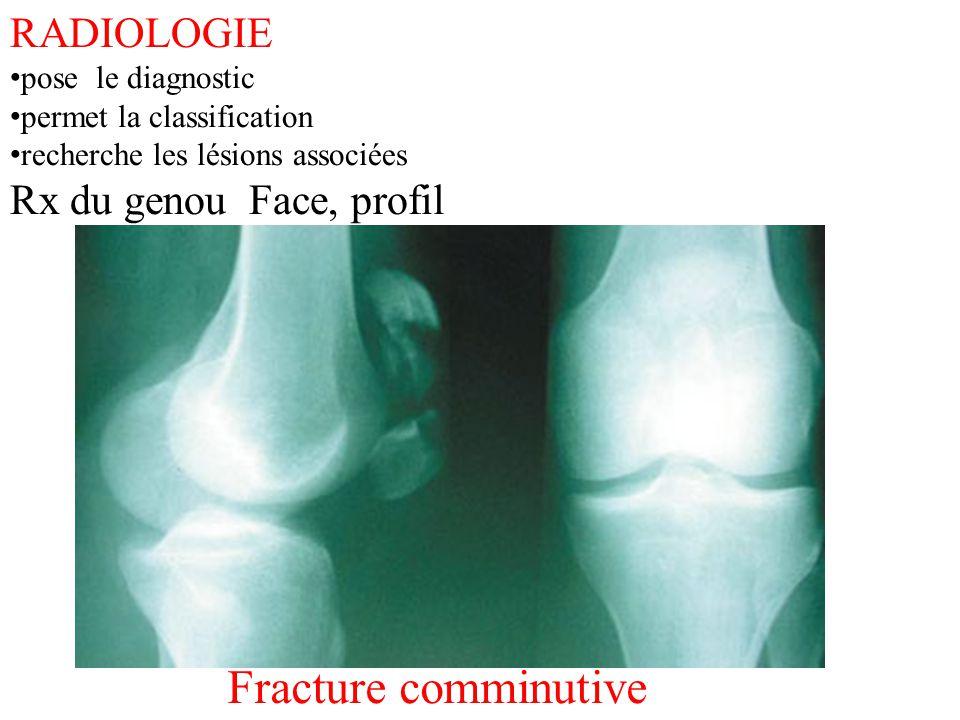 RADIOLOGIE pose le diagnostic permet la classification recherche les lésions associées Rx du genou Face, profil Fracture comminutive