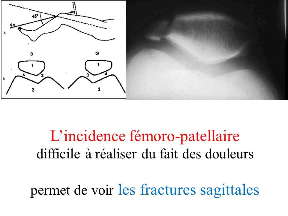 L'incidence fémoro-patellaire difficile à réaliser du fait des douleurs permet de voir les fractures sagittales