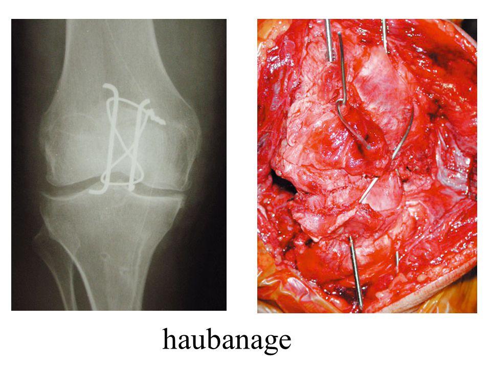 haubanage