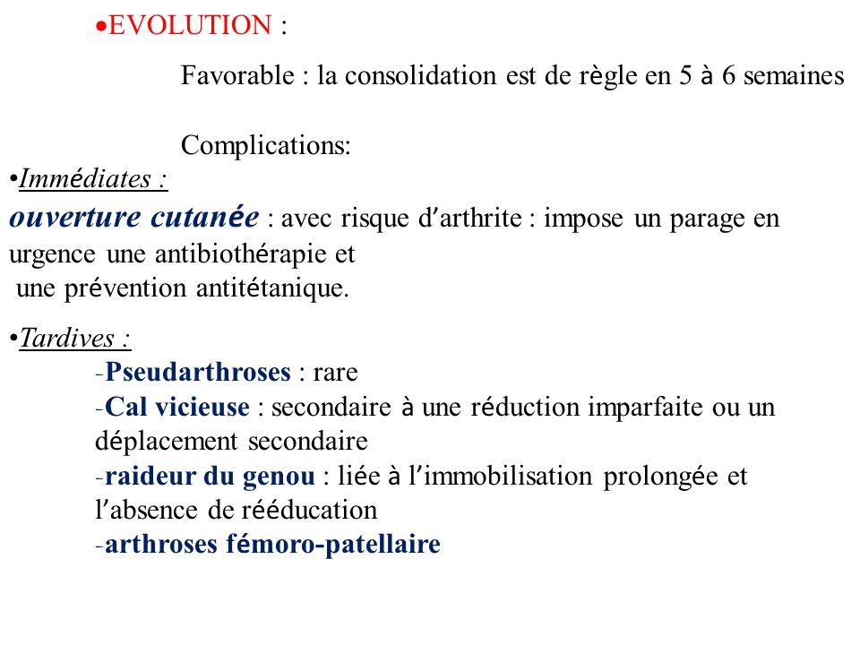 EVOLUTION : Favorable : la consolidation est de r è gle en 5 à 6 semaines Complications: Imm é diates : ouverture cutan é e : avec risque d ' arthri