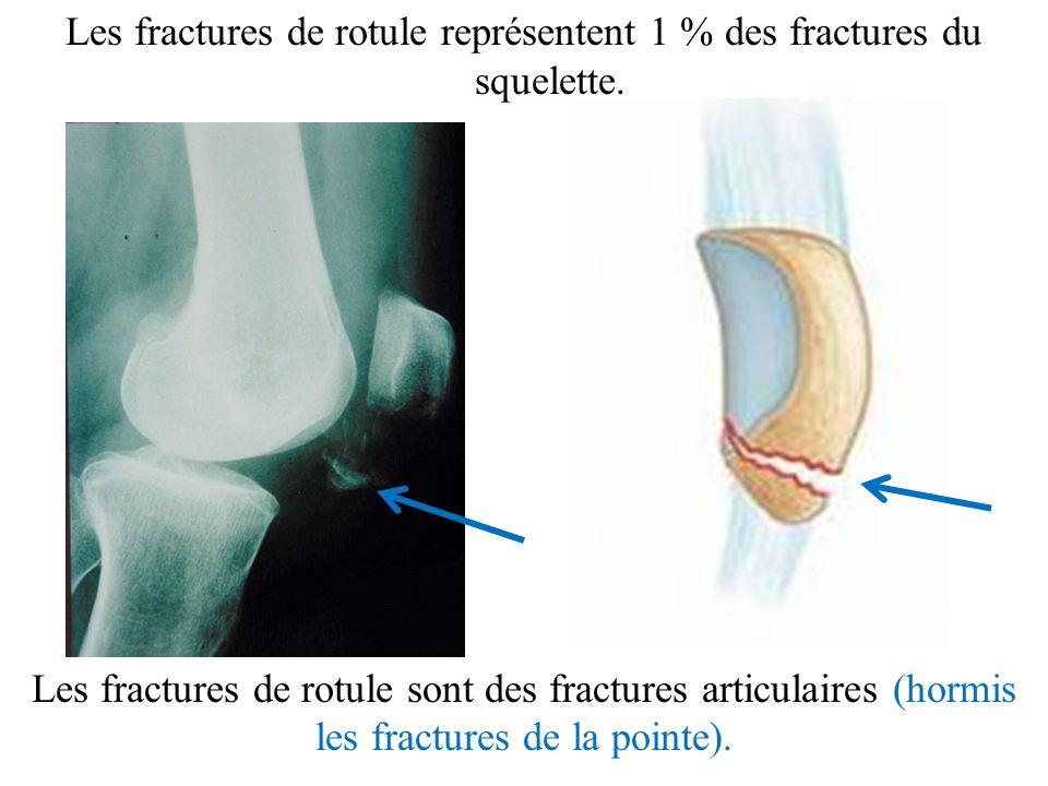 Les fractures de rotule représentent 1 % des fractures du squelette. Les fractures de rotule sont des fractures articulaires (hormis les fractures de