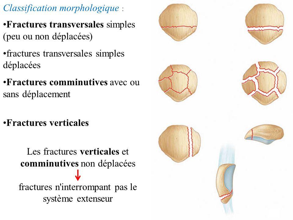INICATIONS : Fractures non déplacées respectant la continuité de l'appareil extenseur : traitement orthopédique (fracture verticale, parcellaire ou en étoile) Fracture déplacée et rampant la continuité du système extenseur : chirurgical Fracture ouverte : parage et ostéosynthèse Fracture de la pointe : patellectomie et réinsertion tendineuse trans-osseuse