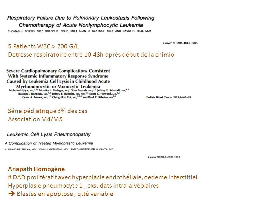 5 Patients WBC > 200 G/L Detresse respiratoire entre 10-48h après début de la chimio Série pédiatrique 3% des cas Association M4/M5 Anapath Homogène #