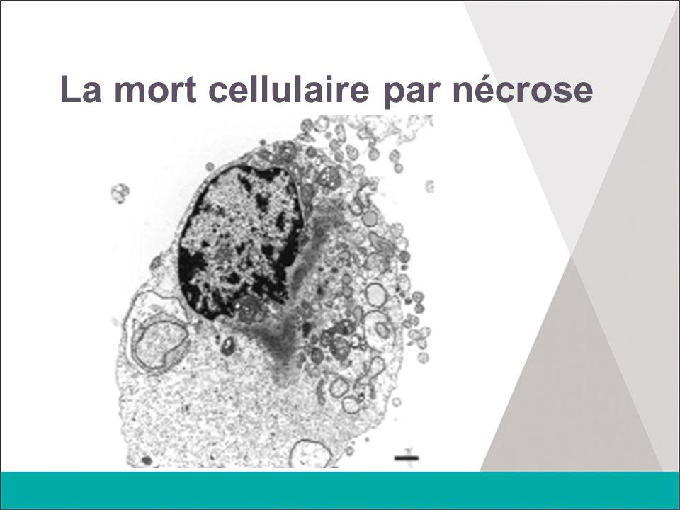 La mort cellulaire par nécrose