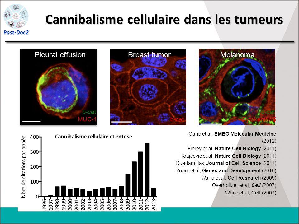 Pleural effusion MUC-1 b-cat Breast tumor b-cat Cano et al, EMBO Molecular Medicine (2012) Florey et al, Nature Cell Biology (2011) Krajcovic et al, N