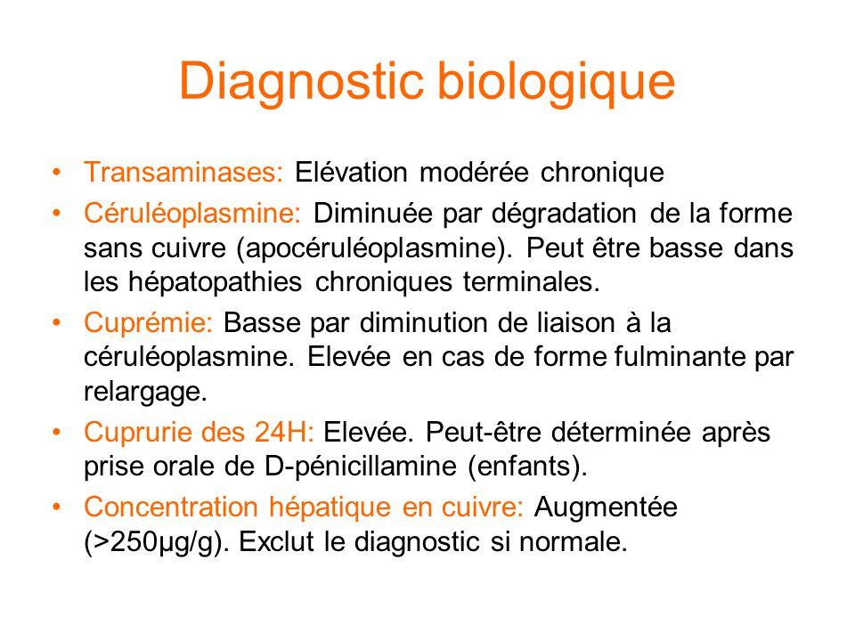 Diagnostic biologique Transaminases: Elévation modérée chronique Céruléoplasmine: Diminuée par dégradation de la forme sans cuivre (apocéruléoplasmine