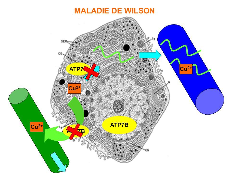ATP7B Cu 2+ ATP7B Cu 2+ ATP7B Cu 2+ MALADIE DE WILSON