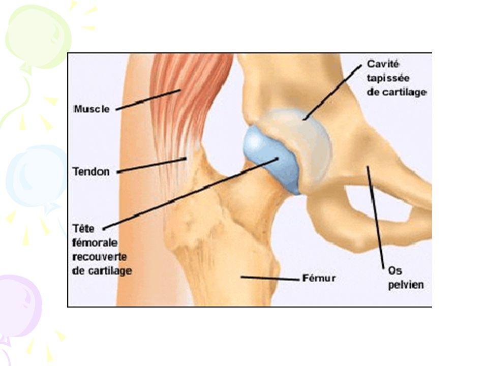 La luxation congénitale de la hanche Correspond à une position de la tête fémorale complètement ou partiellement hors du cotyle Entraîne: - Une limitation de l'abduction < à 60° - Un bassin asymétrique - Une asymétrie des plis cutanés - Une hanche instable - Un dysplasie cotyloïdienne - Une réduction ou irréduction de la tête fémorale
