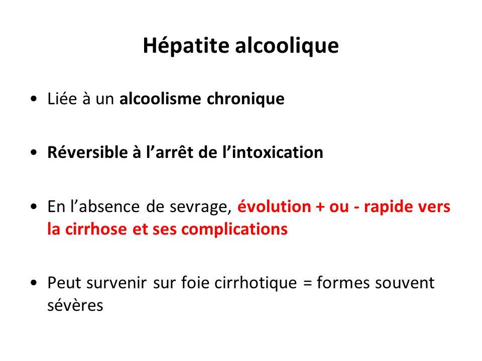 Hépatite alcoolique Liée à un alcoolisme chronique Réversible à l'arrêt de l'intoxication En l'absence de sevrage, évolution + ou - rapide vers la cir