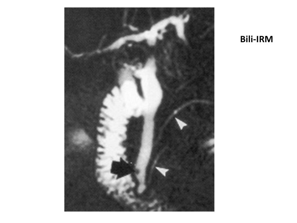 Bili-IRM