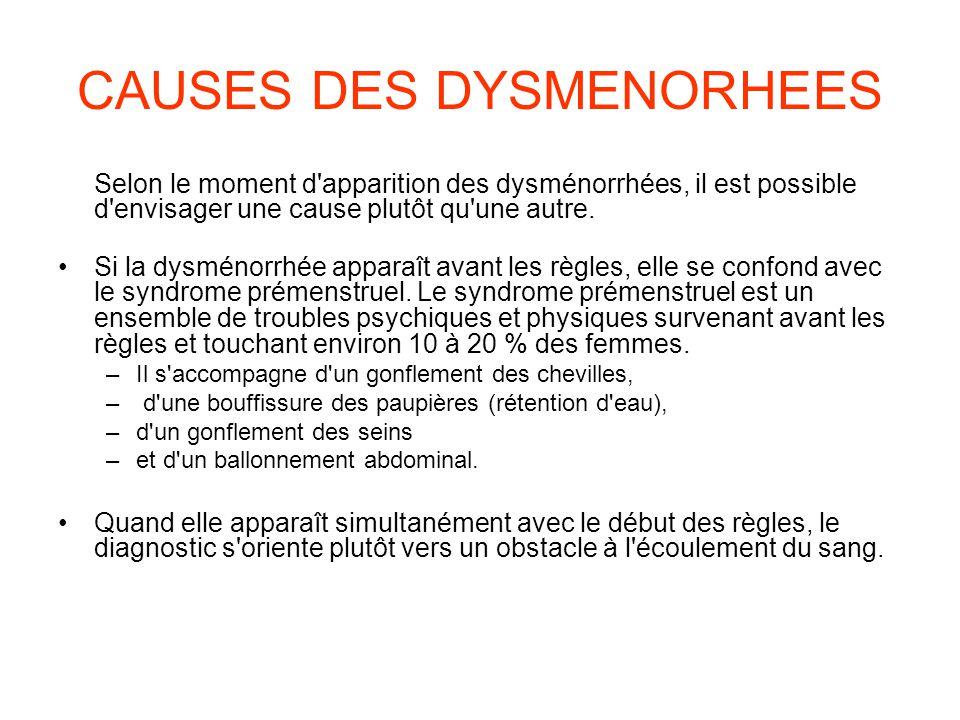 CAUSES DES DYSMENORHEES Selon le moment d apparition des dysménorrhées, il est possible d envisager une cause plutôt qu une autre.