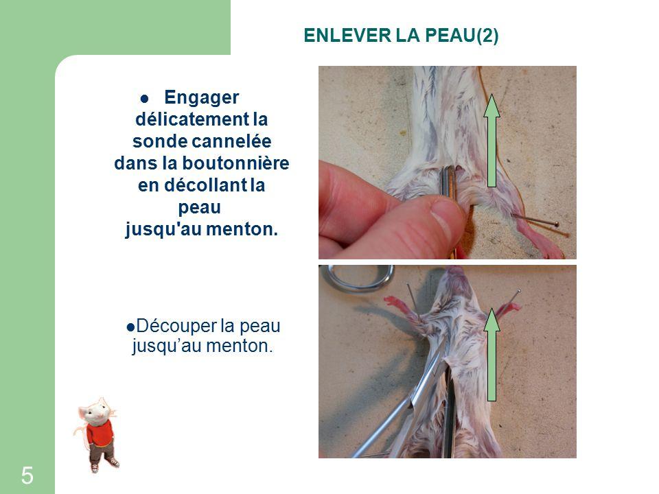 4 Faire une boutonnière (un trou) dans la peau de l abdomen en avant de l orifice urinaire: pour cela, pincer la peau en la soulevant et couper la peau tendue.