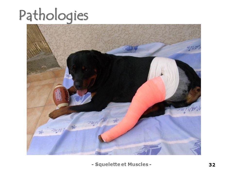 Pathologies - Squelette et Muscles - 32