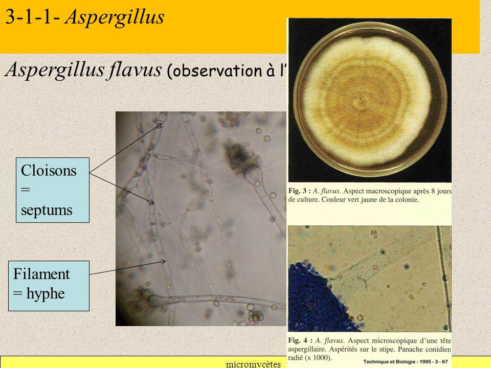 micromycètes 3-1-1- Aspergillus Aspergillus flavus (observation à l'objectif X 40) Cloisons = septums Filament = hyphe