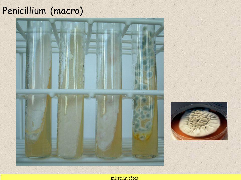 micromycètes Penicillium (macro)