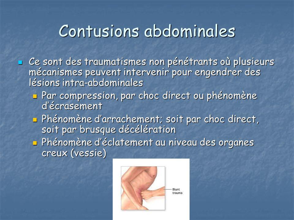 Contusions abdominales Ce sont des traumatismes non pénétrants où plusieurs mécanismes peuvent intervenir pour engendrer des lésions intra-abdominales