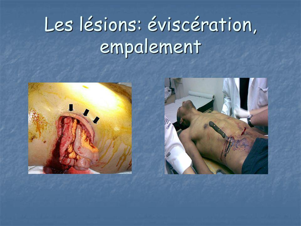 Les lésions: éviscération, empalement