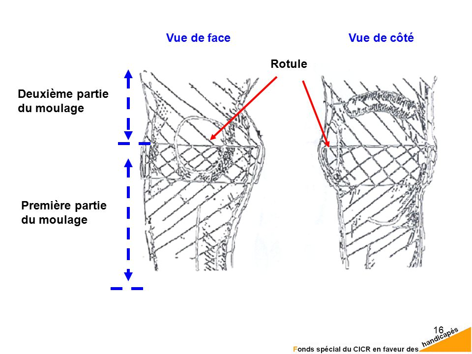 16 Première partie du moulage Rotule Deuxième partie du moulage Vue de faceVue de côté
