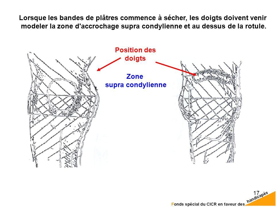 17 Position des doigts Zone supra condylienne Lorsque les bandes de plâtres commence à sécher, les doigts doivent venir modeler la zone d accrochage supra condylienne et au dessus de la rotule.