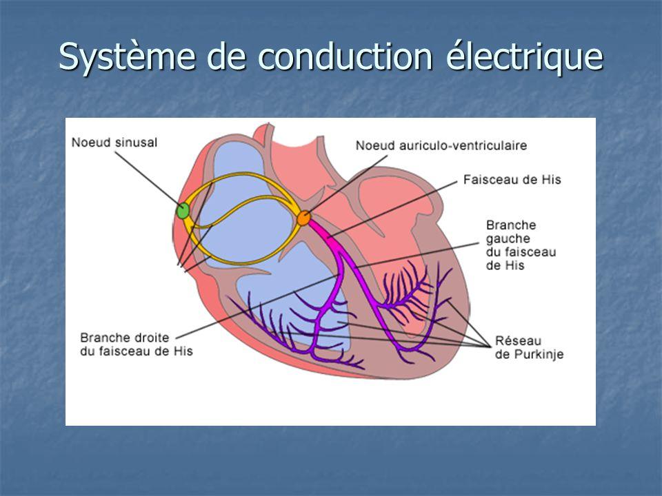 Système de conduction électrique
