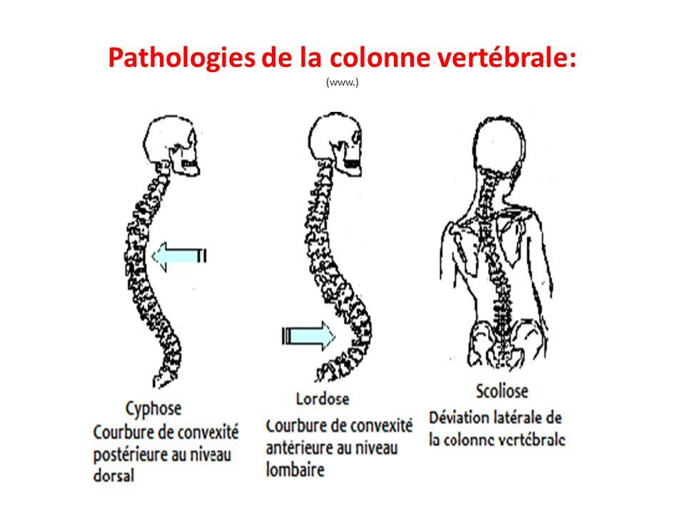 Pathologies de la colonne vertébrale: (www.)