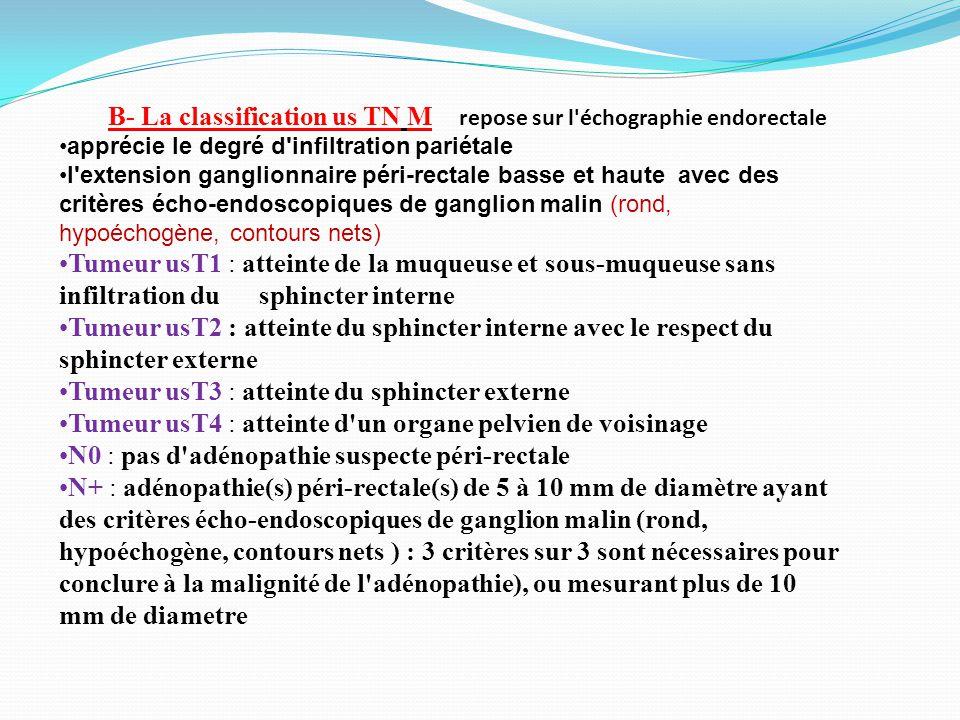 B- La classification us TN M repose sur l échographie endorectale apprécie le degré d infiltration pariétale l extension ganglionnaire péri-rectale basse et haute avec des critères écho-endoscopiques de ganglion malin (rond, hypoéchogène, contours nets) Tumeur usT1 : atteinte de la muqueuse et sous-muqueuse sans infiltration du sphincter interne Tumeur usT2 : atteinte du sphincter interne avec le respect du sphincter externe Tumeur usT3 : atteinte du sphincter externe Tumeur usT4 : atteinte d un organe pelvien de voisinage N0 : pas d adénopathie suspecte péri-rectale N+ : adénopathie(s) péri-rectale(s) de 5 à 10 mm de diamètre ayant des critères écho-endoscopiques de ganglion malin (rond, hypoéchogène, contours nets ) : 3 critères sur 3 sont nécessaires pour conclure à la malignité de l adénopathie), ou mesurant plus de 10 mm de diametre