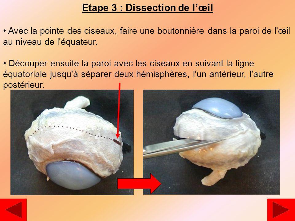 Etape 3 : Dissection de l'œil Avec la pointe des ciseaux, faire une boutonnière dans la paroi de l œil au niveau de l équateur.