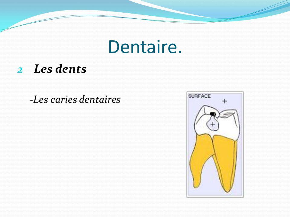 Dentaire. 2 Les dents -Les caries dentaires