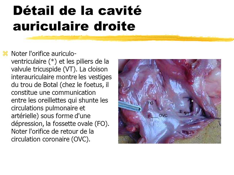 Détail de la cavité auriculaire droite zNoter l'orifice auriculo- ventriculaire (*) et les piliers de la valvule tricuspide (VT). La cloison interauri