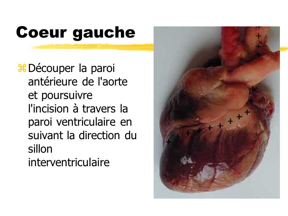Coeur gauche zDécouper la paroi antérieure de l'aorte et poursuivre l'incision à travers la paroi ventriculaire en suivant la direction du sillon inte
