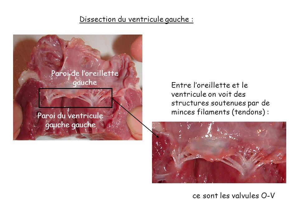 Entre l'oreillette et le ventricule on voit des structures soutenues par de minces filaments (tendons) : Dissection du ventricule gauche : ce sont les valvules O-V Paroi de l'oreillette gauche Paroi du ventricule gauche gauche