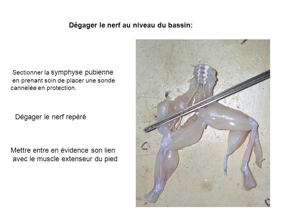 Dégager le nerf au niveau du bassin: Sectionner la symphyse pubienne en prenant soin de placer une sonde cannelée en protection.