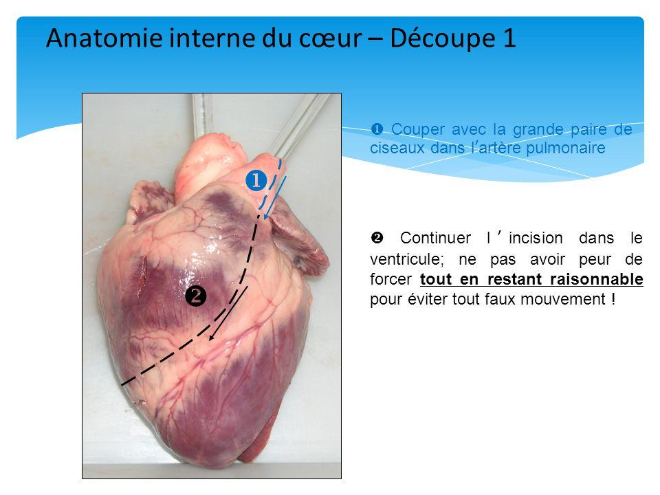    Couper avec la grande paire de ciseaux dans l'artère pulmonaire  Continuer l'incision dans le ventricule; ne pas avoir peur de forcer tout en restant raisonnable pour éviter tout faux mouvement .