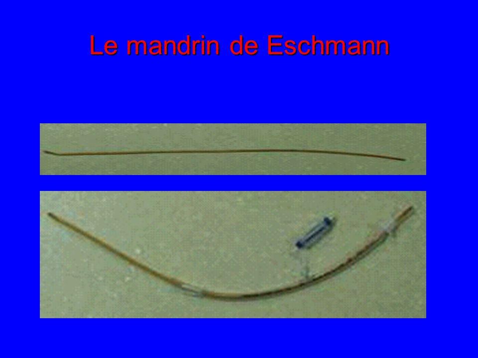 Utilisation d un mandrin d Eschmann dans l intubation. - EM consulte