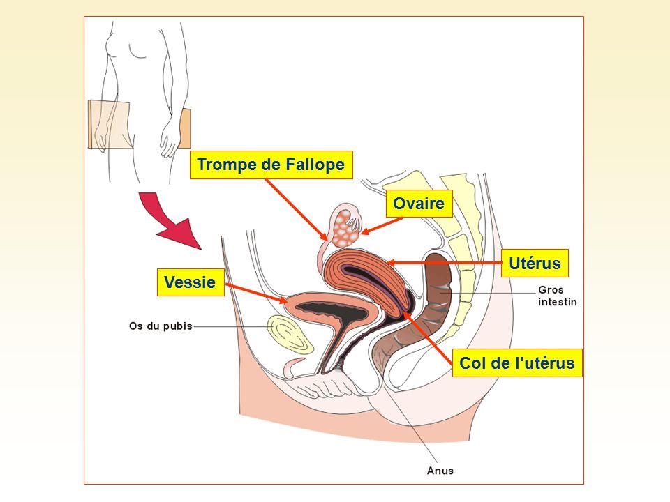 Trompe de FallopeOvaireUtérus Col de l'utérus Vessie